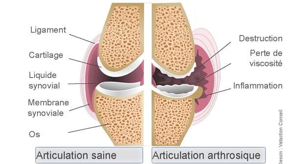 Articulation saine et articulation arthrosique